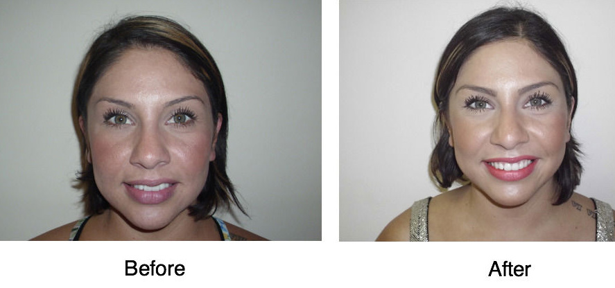 lower face lift before and after photos